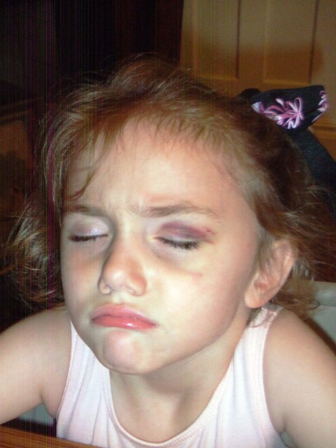 Vivian black eye